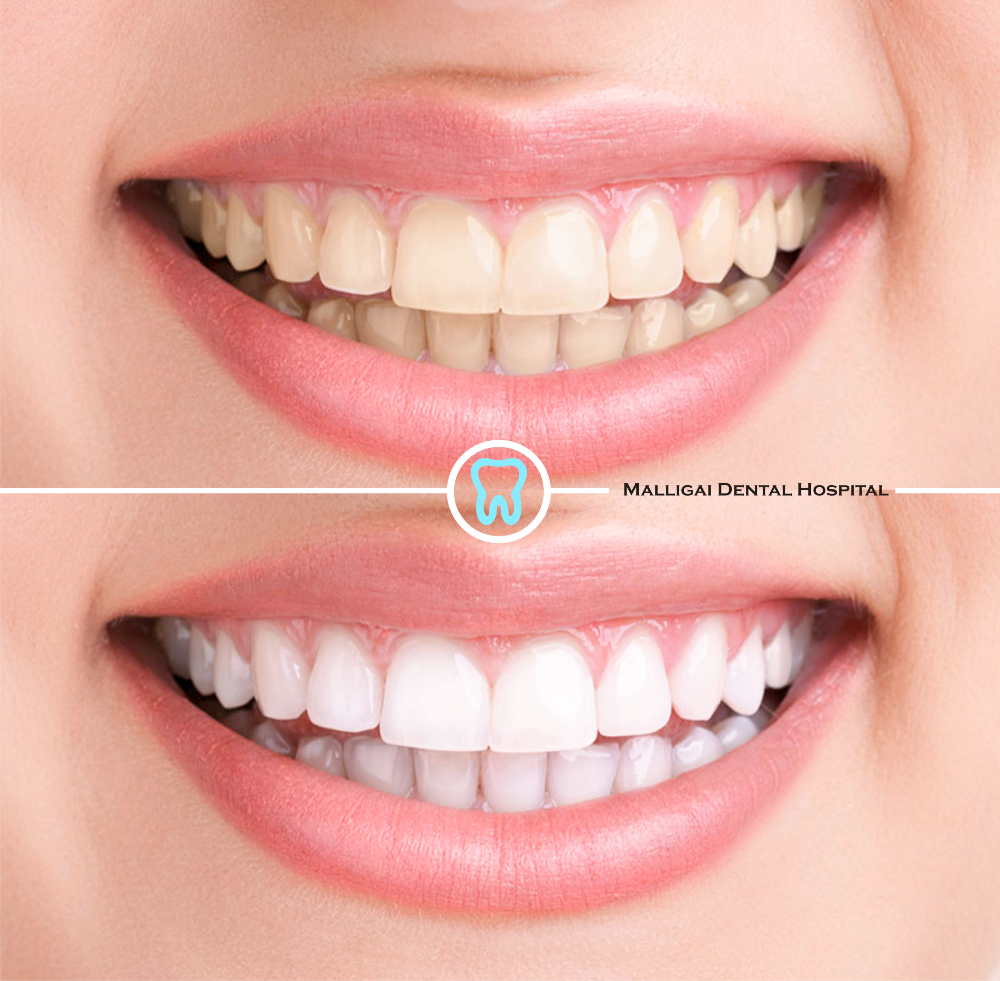 LASER Teeth Whitening Zoom Bleaching Cleaning Cost in Chennai
