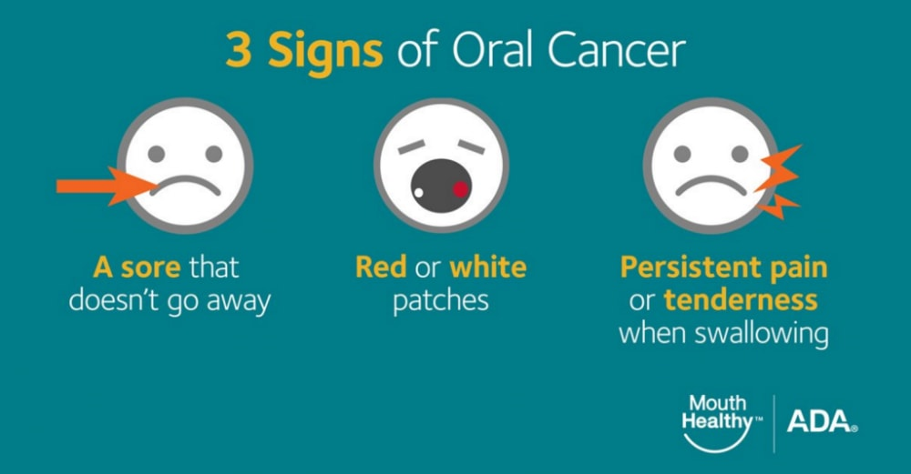 Oral Cancer Early Cancer Detection Treatment Success Rates